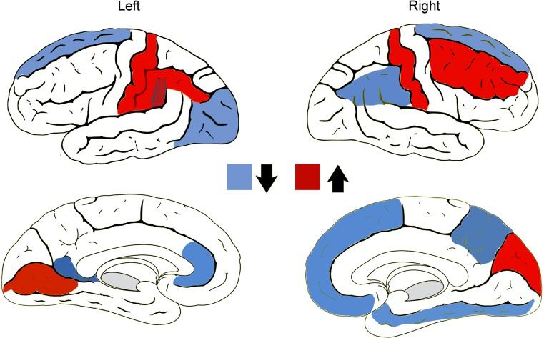 Effects of the cross-sex hormonal treatment on the cortical thickness of male-to-female (MtFs) and female-to-male (FtMs) transsexuals. Blue↓: cortical regions in which estradiol + antiandrogens thinned the cortex in MtFs. Red↑: cortical regions in which testosterone thickened the cortex in FtMs. Data transformed in images from the longitudinal study of Zubiaurre-Elorza et al. (2014) by Guillamon et al. (2016)